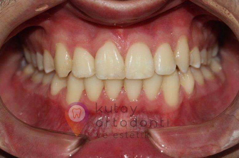 Düzgün Dişler