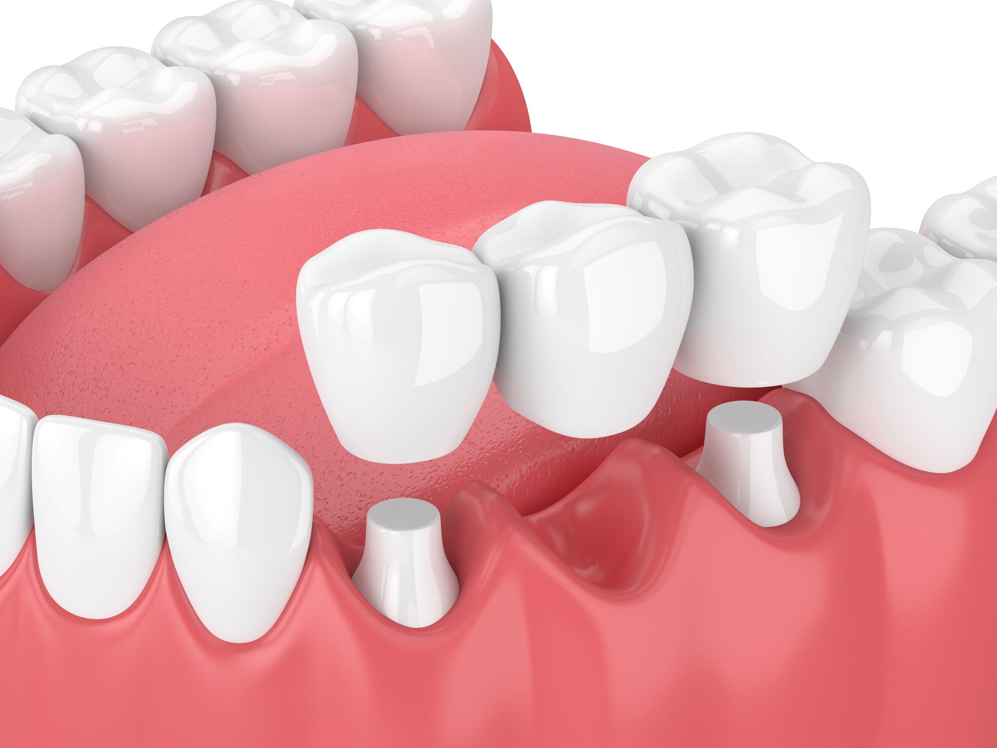 Dental İmplat Tedavisi