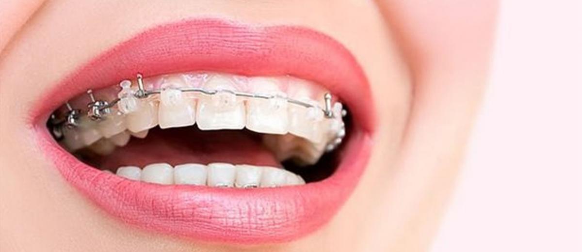 Her Yaşta Ortodontik Tedavi Mümkün Mü