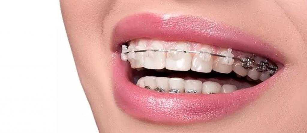 Ortodontik Tedavide Kullanılan Lastikler Nelerdir ve Ne İşe Yarar?