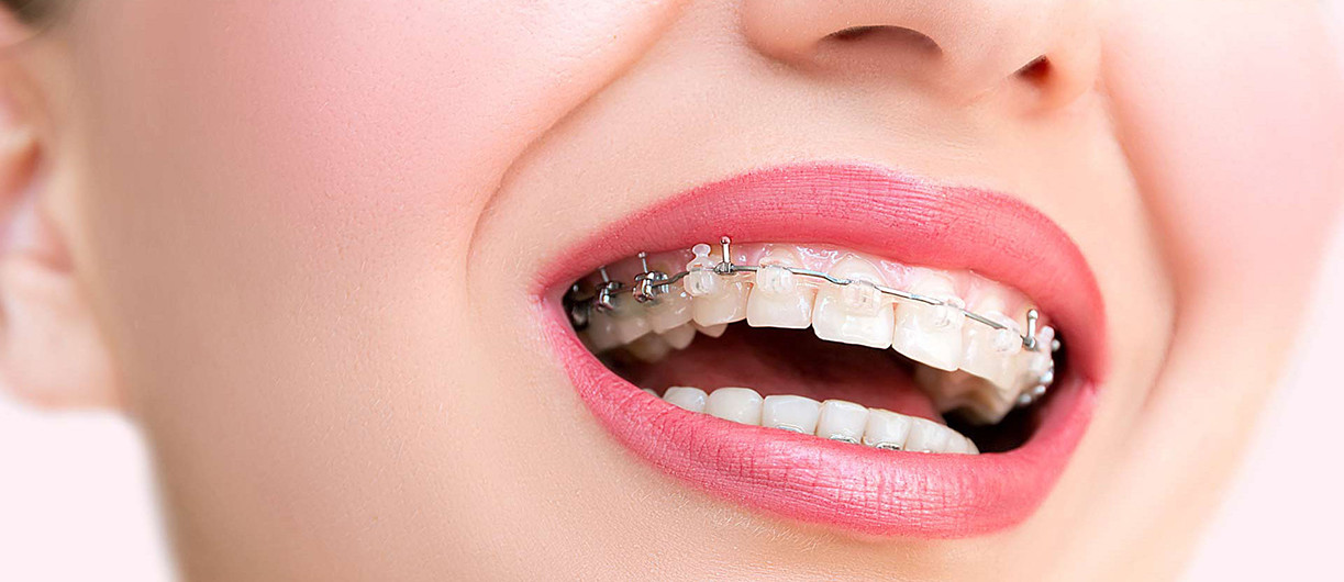 Ortodontik Tedavinin Bilinmeyen Faydaları