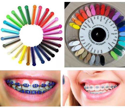 renkli diş teli