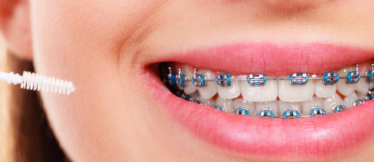 renkli diş telleri nasıl takılır
