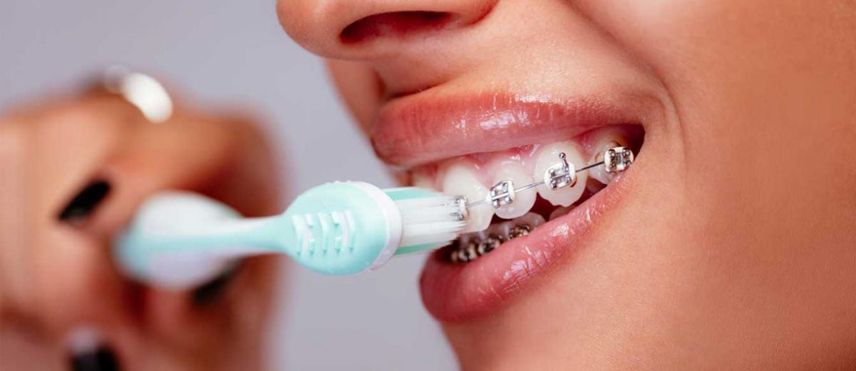 Tel Tedavisinde Diş Fırçalama