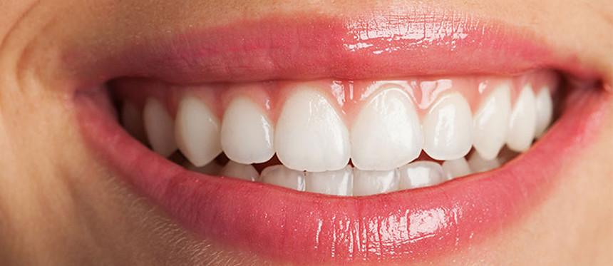 Gummy Smile veya Diş Eti Gülümsemesi Nedir