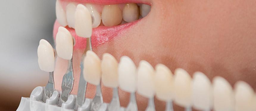 Konjenital (Doğuştan) Diş Eksikliği Tedavisi